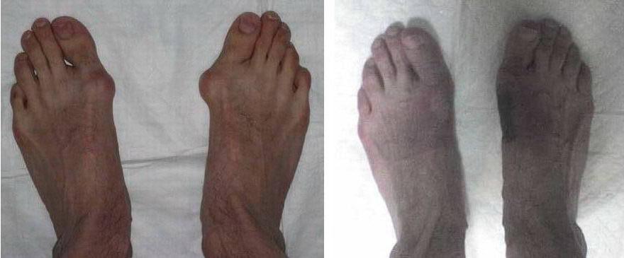 Шишки на ногах причины симптомы лечение